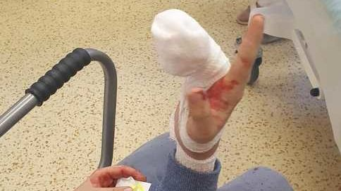 Chlapec přišel při jízdě ve skateparku o kus prstu, otec mu ho našel