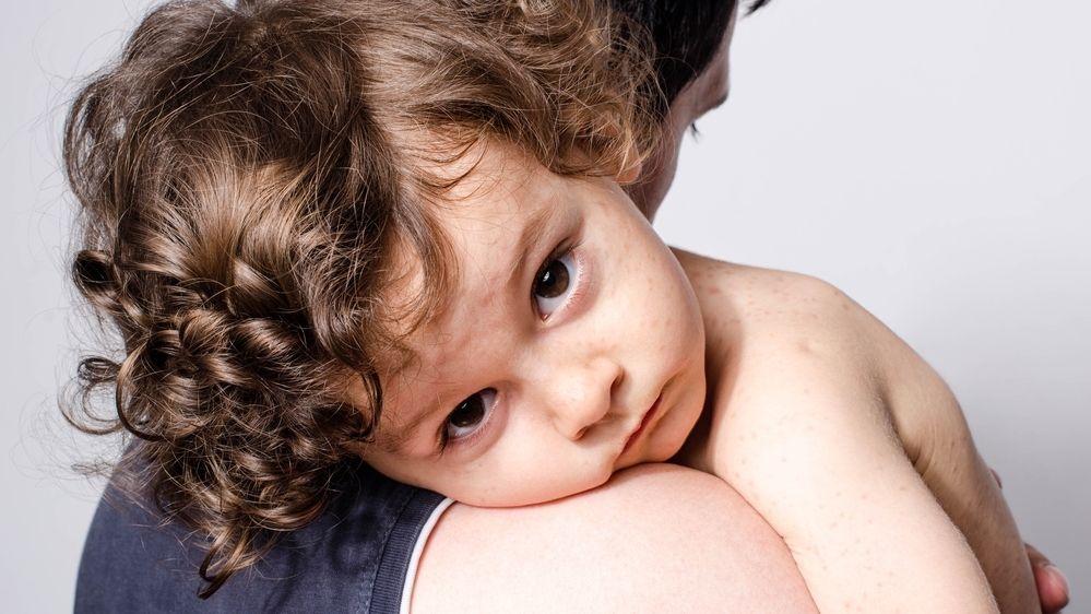 Péče o nemocné mnohdy oslabí celou rodinu