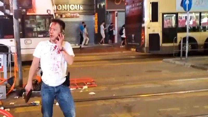 Lidé v Hongkongu vyšli opět do ulic, policista postřelil čtrnáctiletého chlapce