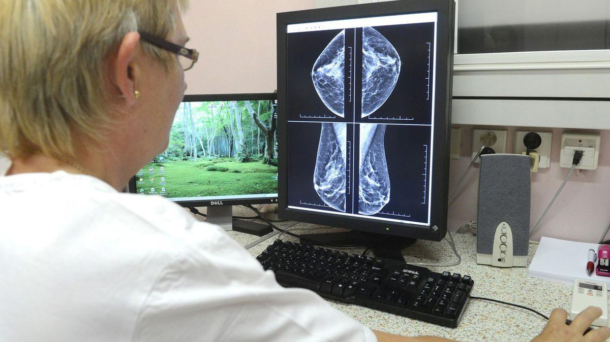 Žena varuje před mamografem, ministerstvo se kvůli poplašné zprávě obrátí na policii