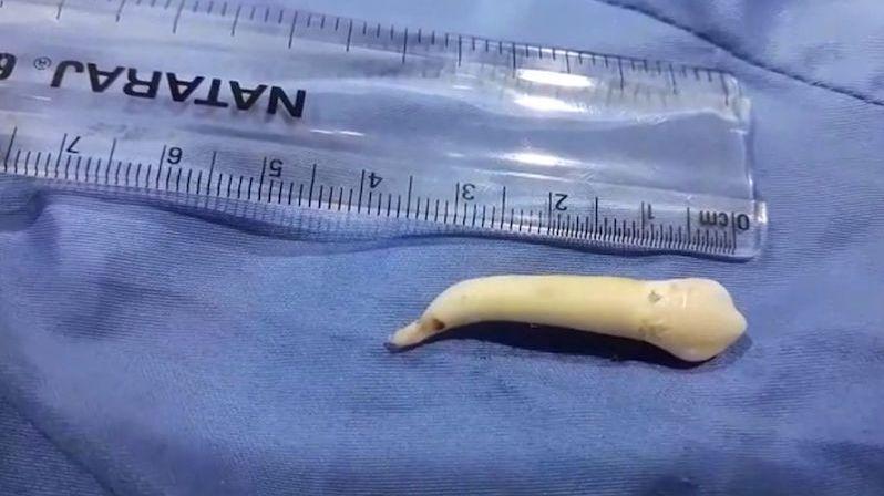 Mladému muži vytrhli rekordně dlouhý zub
