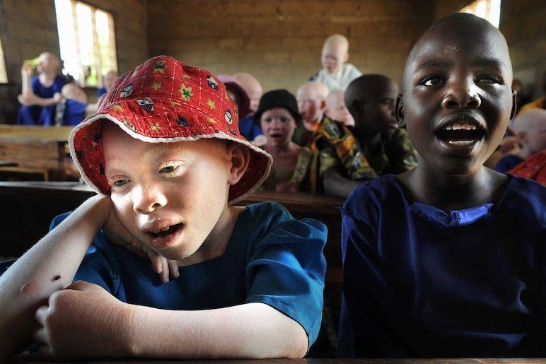 Tanzanie je země, kde je albinismus nejrozšířenější na světě.