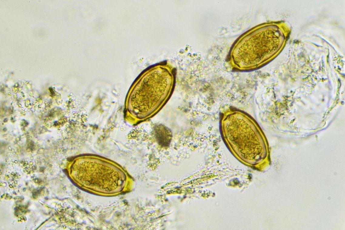 Vajíčka parazita tenkohlavce lidského ve stolici. I to vědci zkoumali.