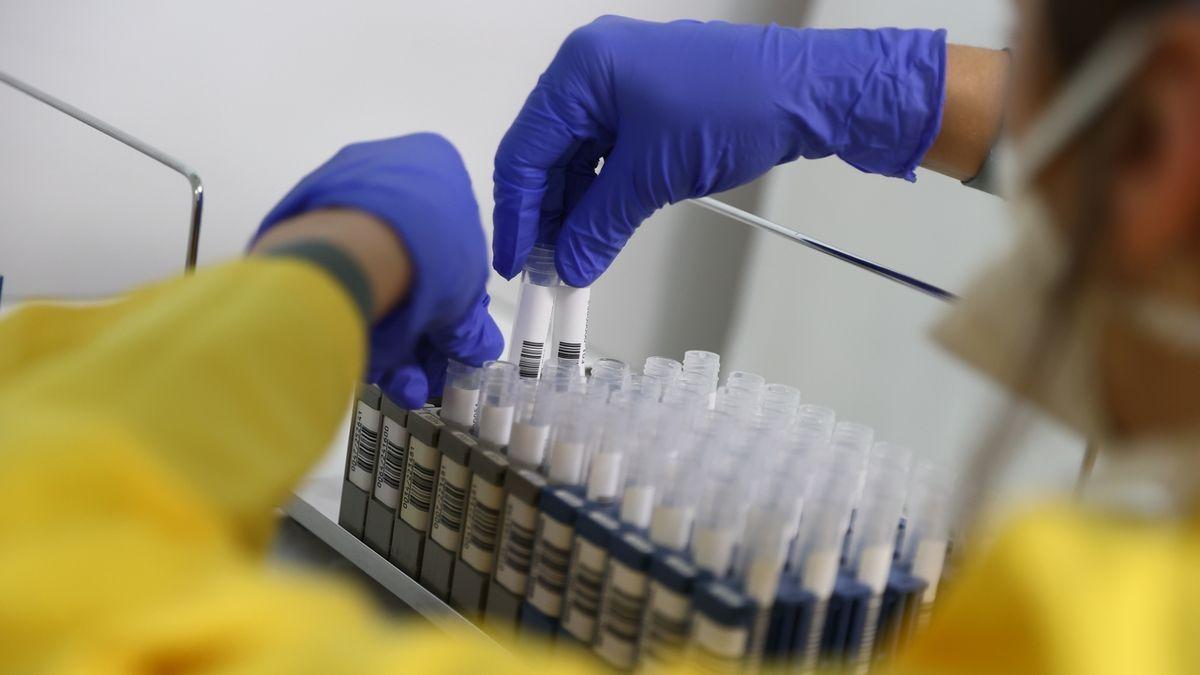 Na pardubické kardiologii je už 10 zdravotníků s koronavirem