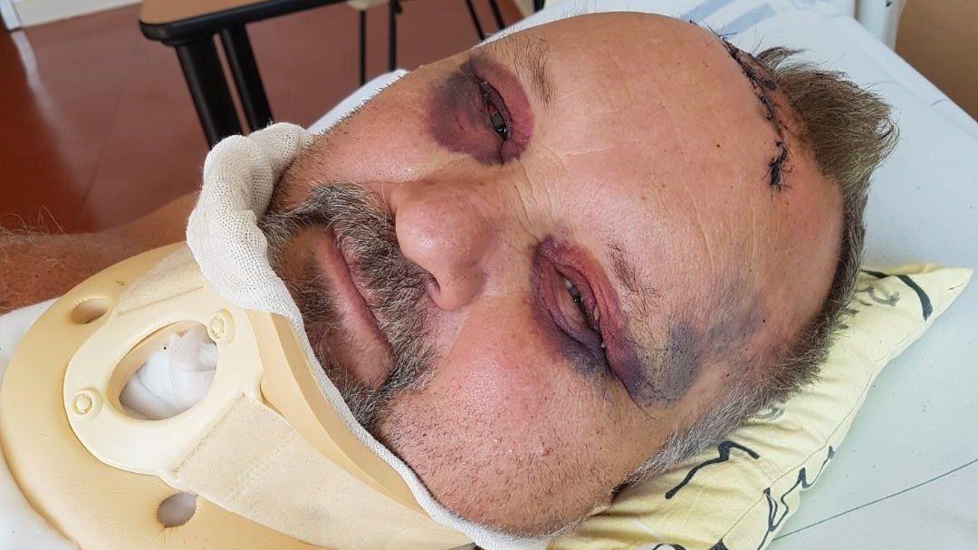 Vážně zraněný Kováčik zveřejnil fotku z nemocnice