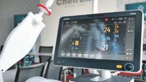 Lékař: Ventilátory stačí, nebude-li nával pacientů