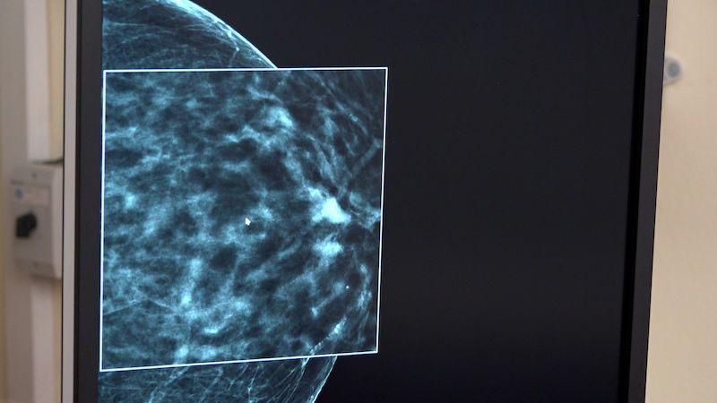 V boji proti rakovině prsu bude na Bulovce pomáhat umělá inteligence