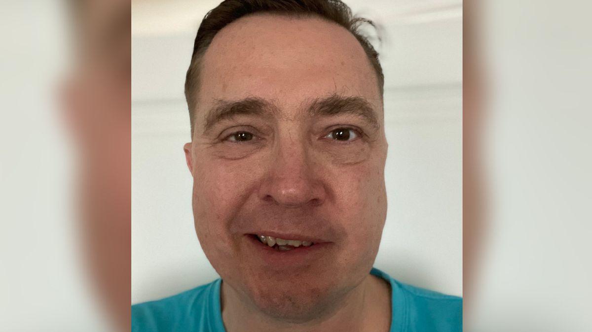 Šmuclerovi po očkování ochrnula půlka obličeje