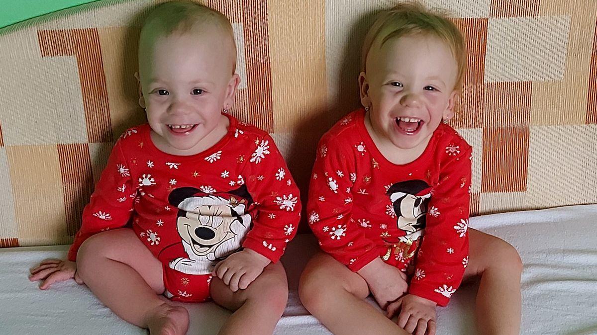 Dvojčata se narodila předčasně. Překonala zdravotní problémy i transplantaci jater