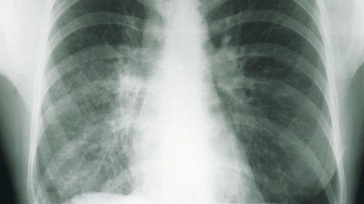 Plíce pacienta s tuberkulózou