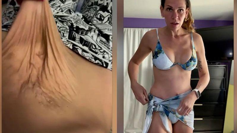 Čtyřnásobnou matku trápila vytahaná kůže na břiše, pomohla jí až operace