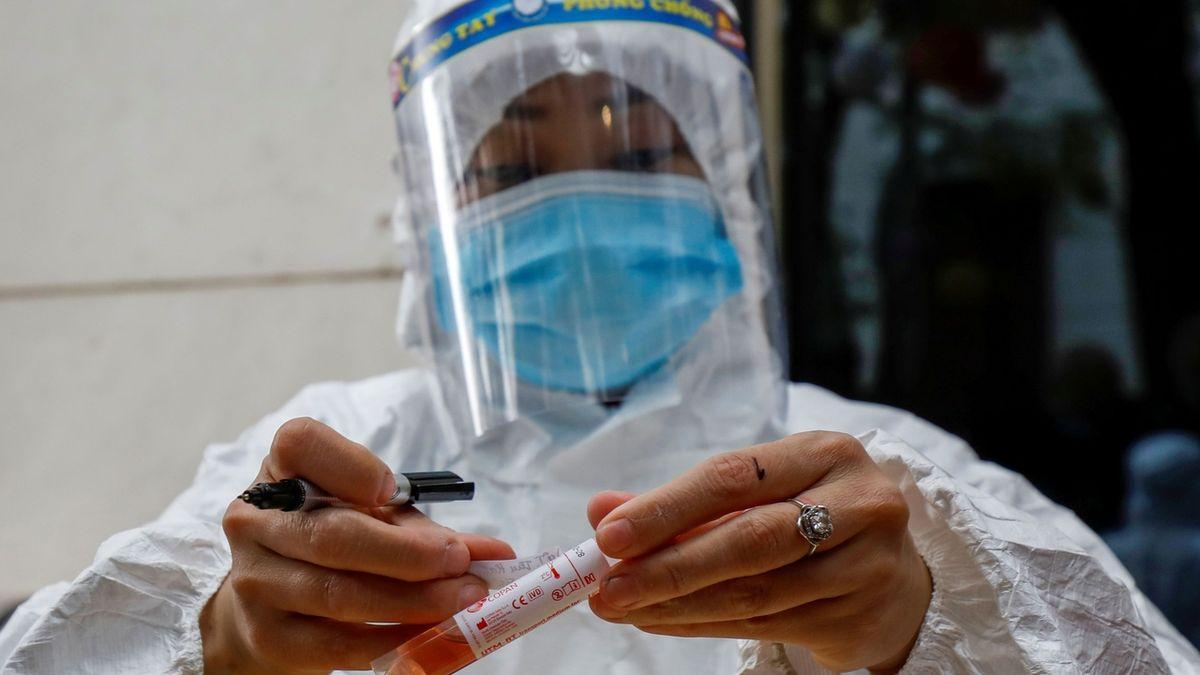 Že má Japonsko citlivější PCR testy? Nesmysl, používají stejné jako my, tvrdí SZÚ