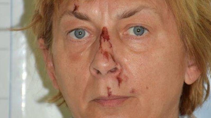 V Chorvatsku našli ženu se ztrátou paměti, případem se zabývá i česká policie