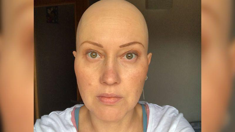 Myslela si, že má zánět močového měchýře, byla to přitom rakovina vaječníků