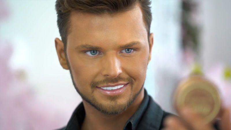 S botoxem ve tváři si užívá luxusu, teď mladý muž vyhlíží staršího sponzora