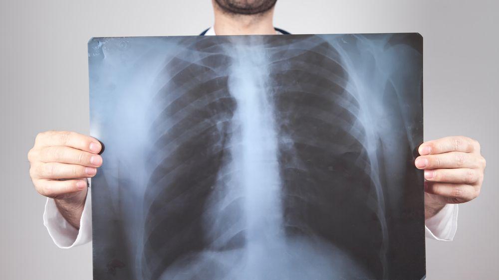 Nebezpečný azbest: Materiál, který škodí zdraví a způsobuje rakovinu