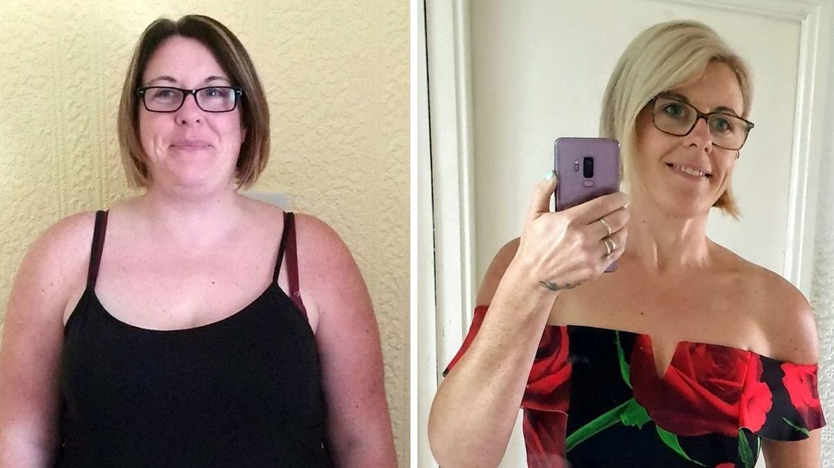 Ženě se povedlo zhubnout 57 kg i bez zmenšení žaludku