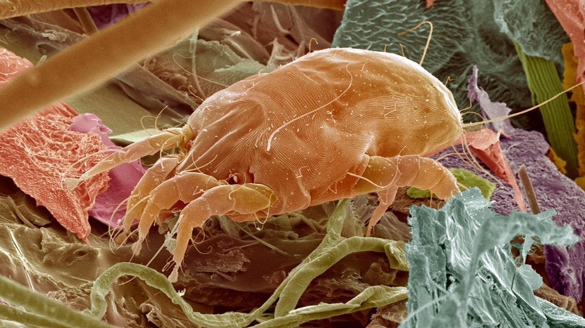 Pohled do mikroskopického světa prachu je jen pro otrlé