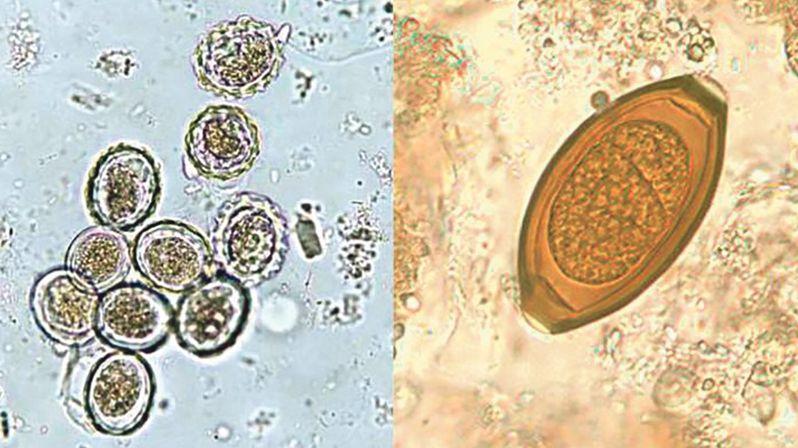 Paraziti z hrobů ukazují, jakým byli ve středověku problémem