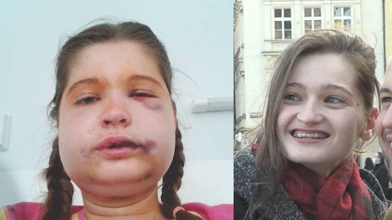 Kristýna žije již 18 let s rovnátky. Úlevu by jí přinesla operace, tu ale pojišťovna nehradí