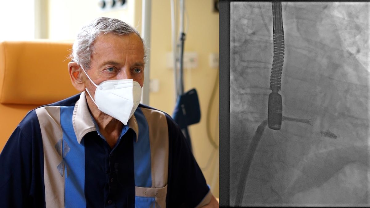 Čeští kardiologové poprvé provedli unikátní zákrok srdeční chlopně